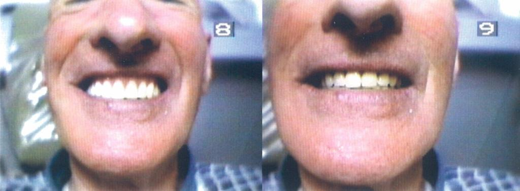 Before and After Aesthetic Smile Improvement
