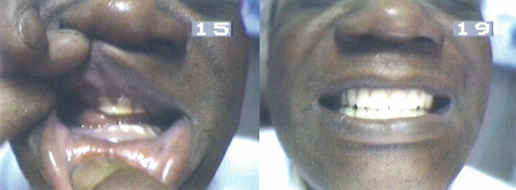 Before and After BPS Complete Upper and Complete Lower Denture