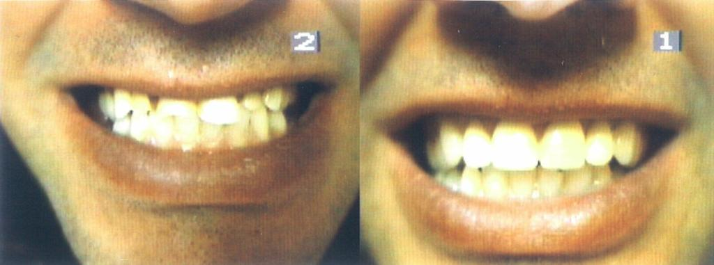 Before and After Complete Upper Denture