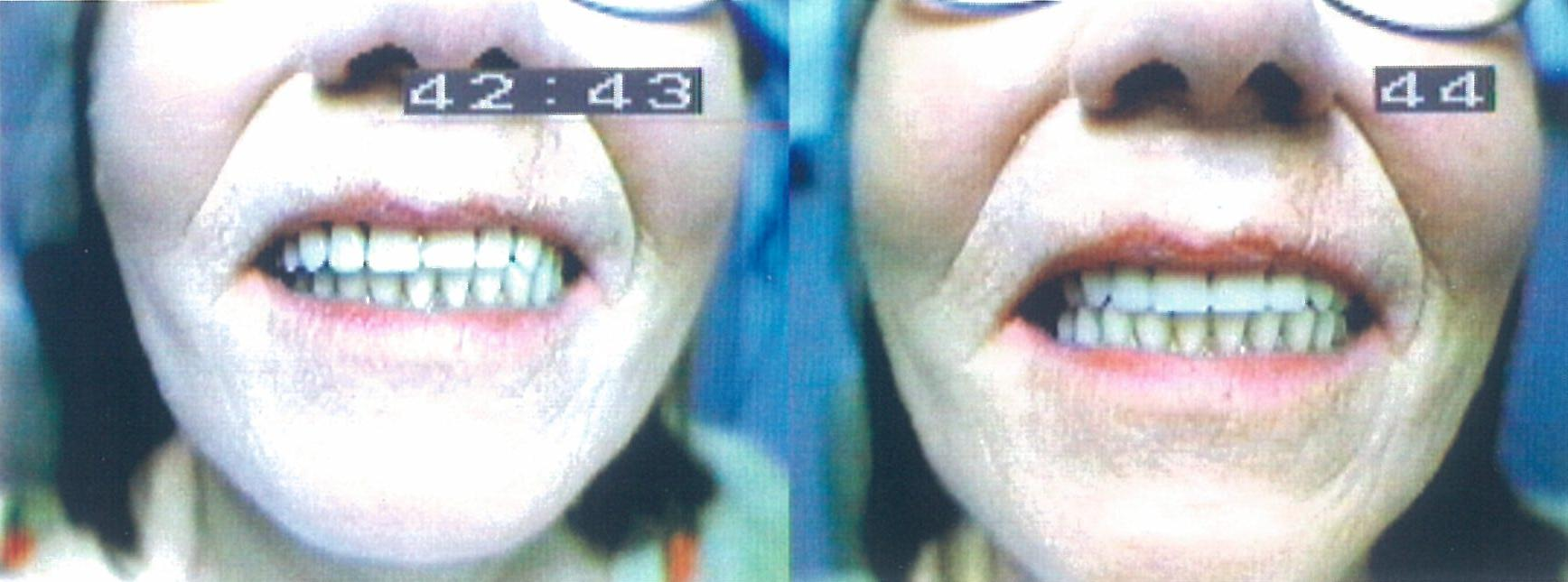 Before and After Complete Upper Implant Supported Denture Denture