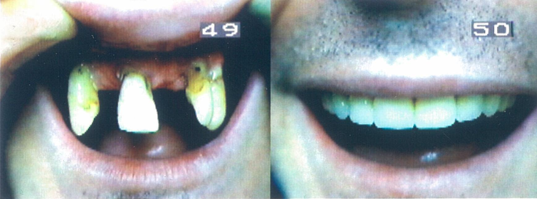Before and After Immediate Upper Denture