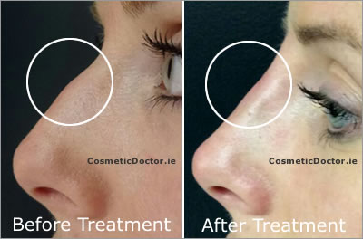 Nose Reshaping With Dermal Fillers Cosmetic Doctor Dublin