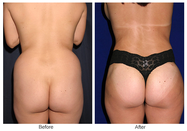 Before & After Buttock Augmentation 3 – F