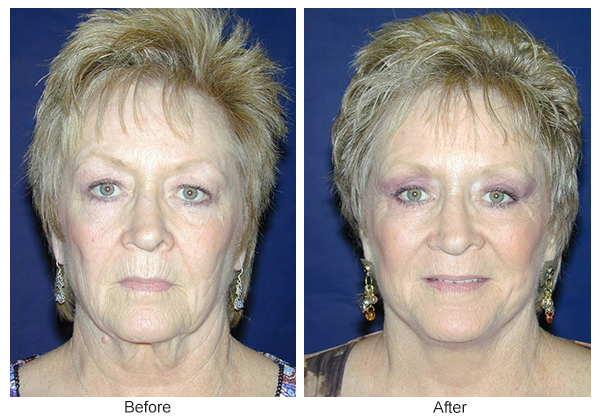 Before & After Facelift 1 – F