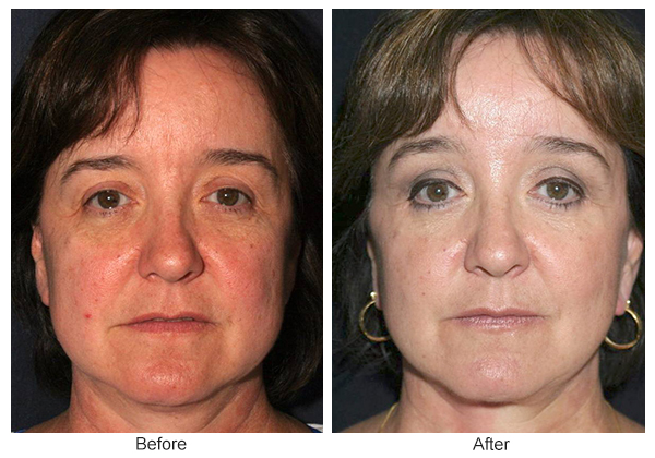 Before & After Forehead Lift 3
