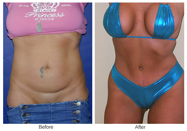 Before & After Tummy Tuck 1 -F