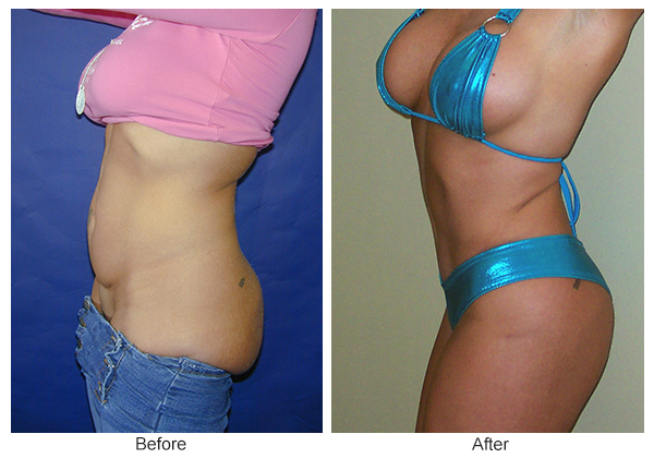 Before & After Tummy Tuck 1 -L