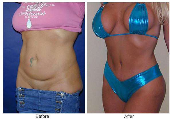 Before & After Tummy Tuck 1 -LQ