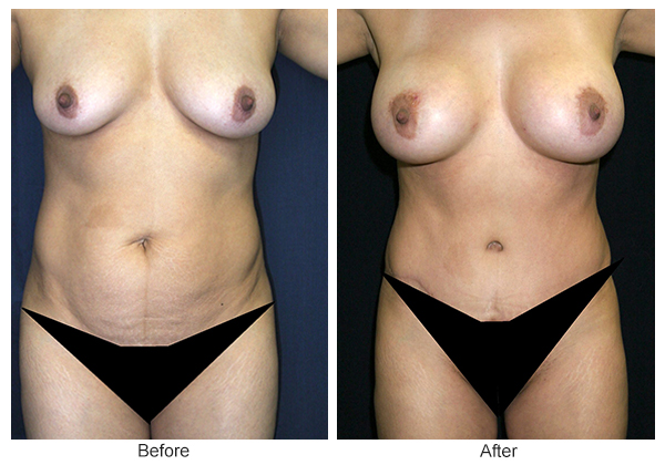 Before & After Tummy Tuck 2 – F