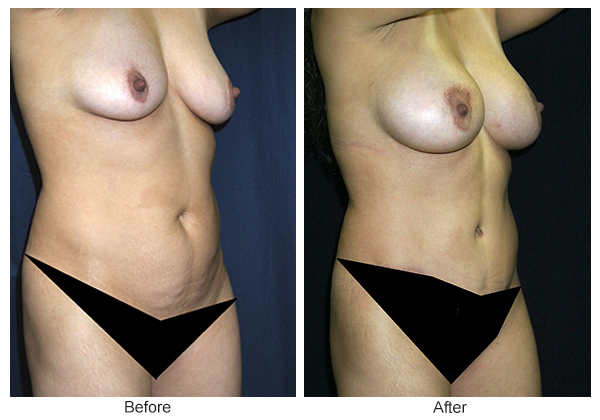 Before & After Tummy Tuck 2 – RQ