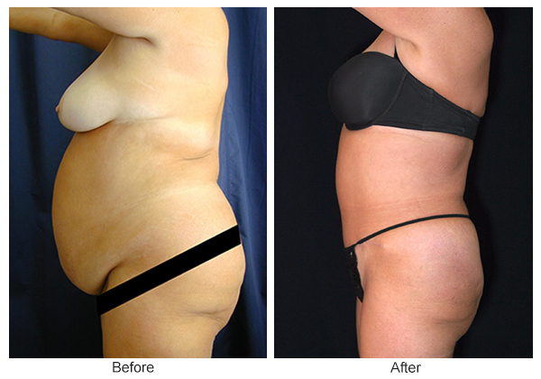 Before & After Tummy Tuck 3 – L