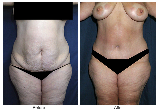 Before & After Tummy Tuck 8  – F