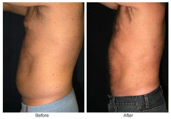 Before and After Liposuction 3 – L