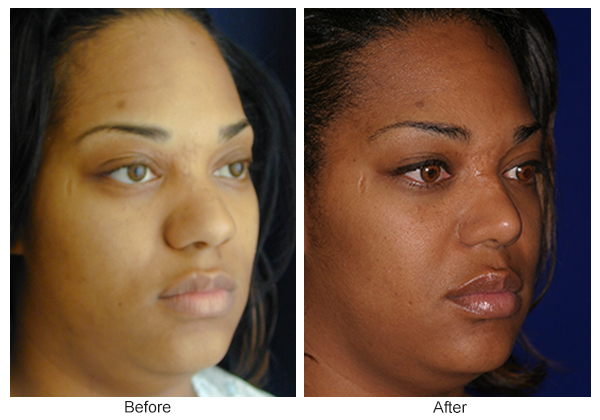 Before and After Rhinoplasty 15 – RQ
