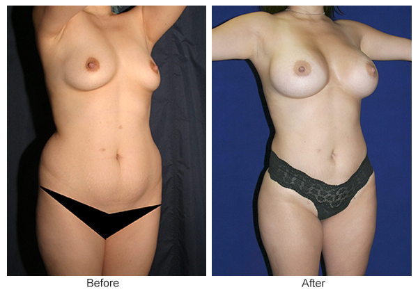 Before & After Breast Augmentation 10 – RQ