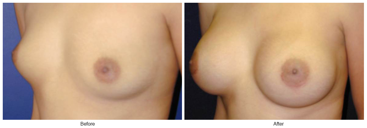 Before & After Breast Augmentation 13 – LQ