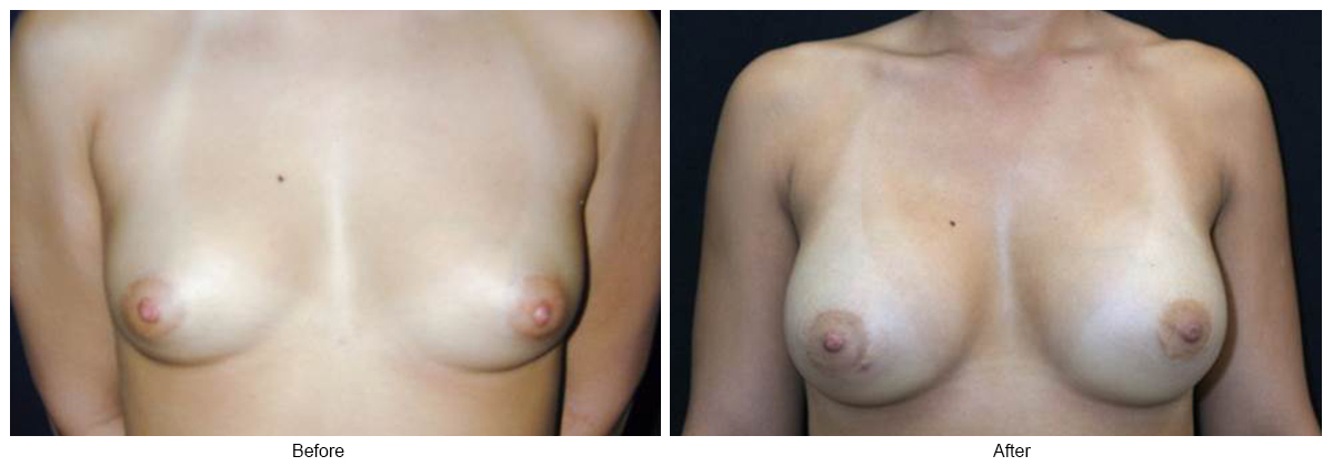 Before & After Breast Augmentation 3 – Front