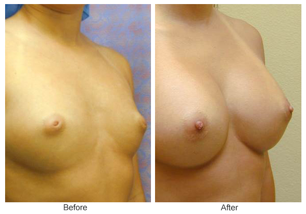 Before and After Breast Augmentation 5 – RQ
