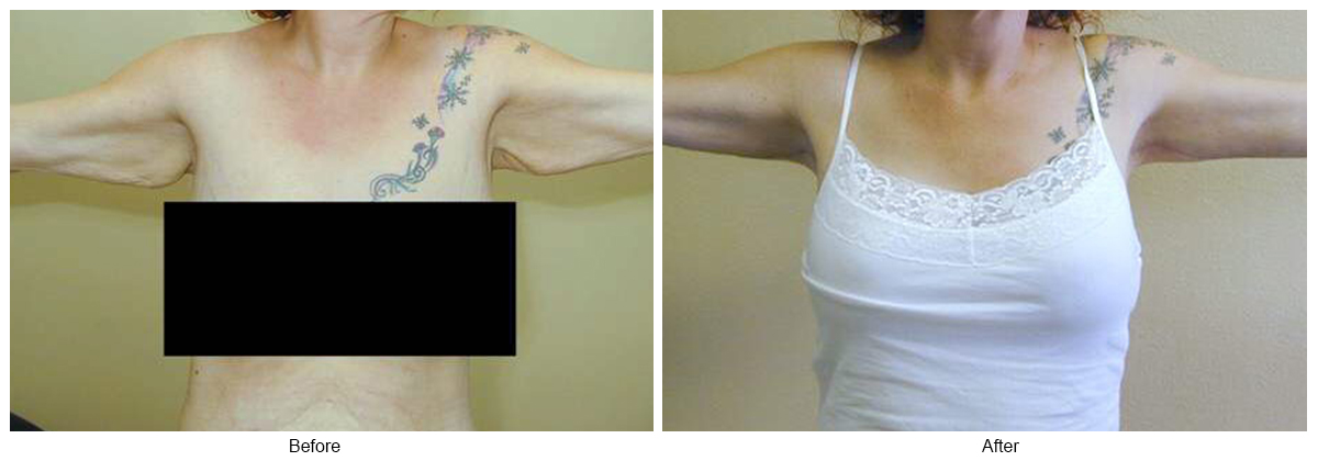 Before & After Arm Lift 3
