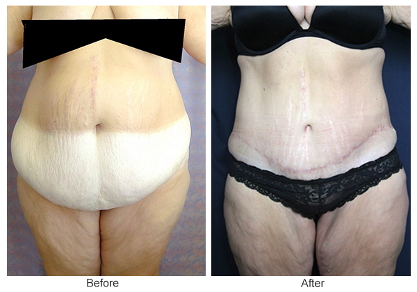 Before & After Body Lift 2 – Front