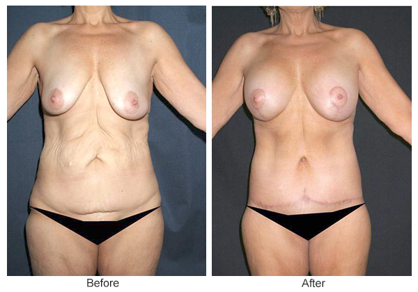Before & After Body Lift 3 – Front