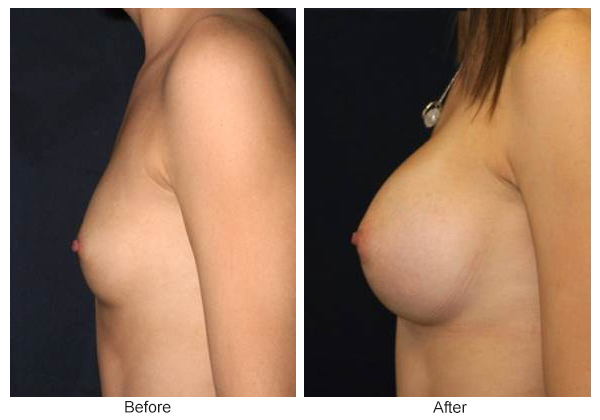 Before & After Breast Augmentation 2 – Left