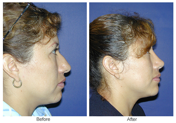 Before & After Rhinoplasty 10 – Right