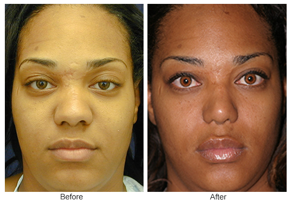 Before & After Rhinoplasty 15 – Front