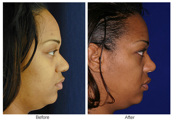 Before & After Rhinoplasty 15 – Right