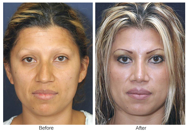 Before & After Rhinoplasty 4 – Front