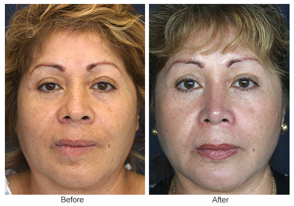 Before & After Rhinoplasty 5 – Front