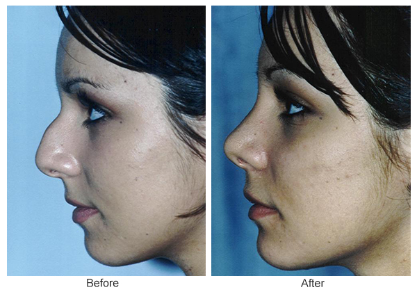 Before & After Rhinoplasty 9 – Left