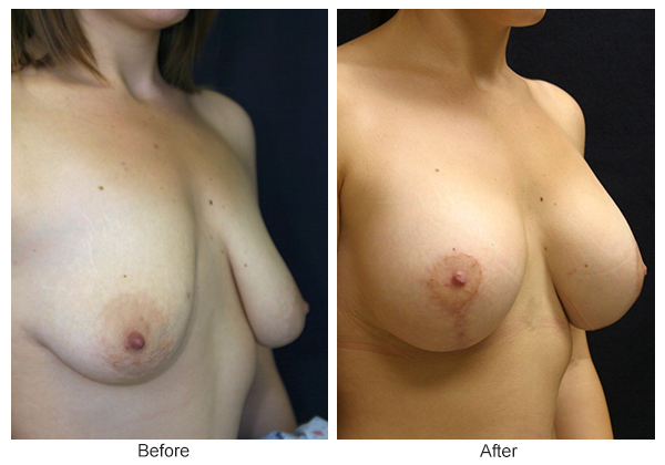 Before and After Breast Lift 14 – RQ