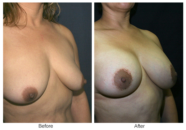 Before and After Breast Lift 3 – RQ