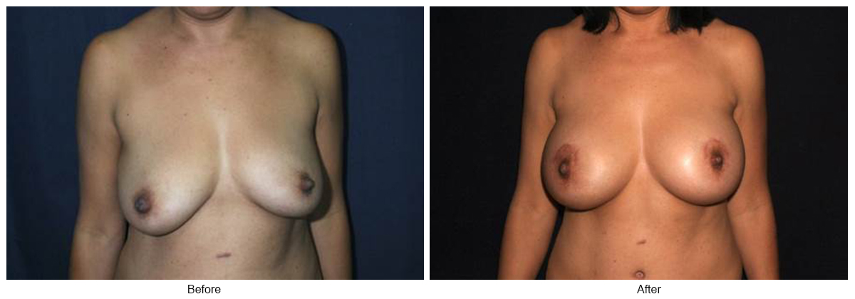 Before and After Breast Lift 4 – F