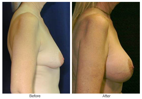 Before and After Breast Lift 6 – R