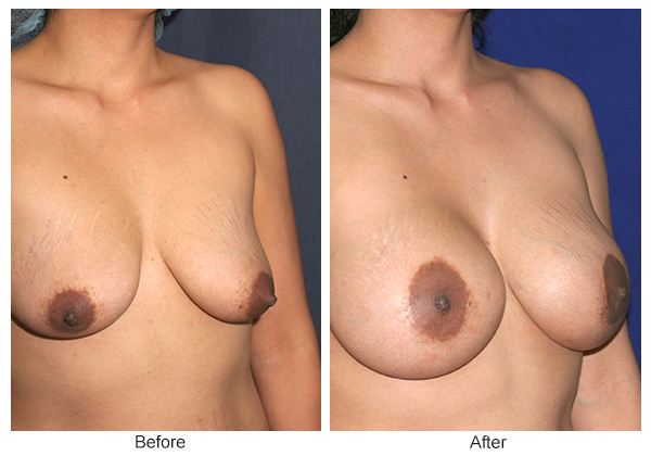Before and After Breast Lift 7 – RQ