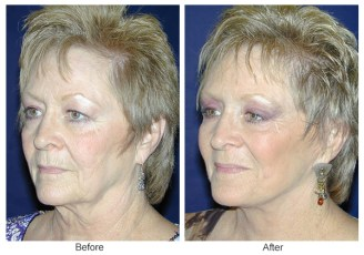 Orange County Cosmetic Surgery Clinique Before & After Facelift 1 - Left Quarter