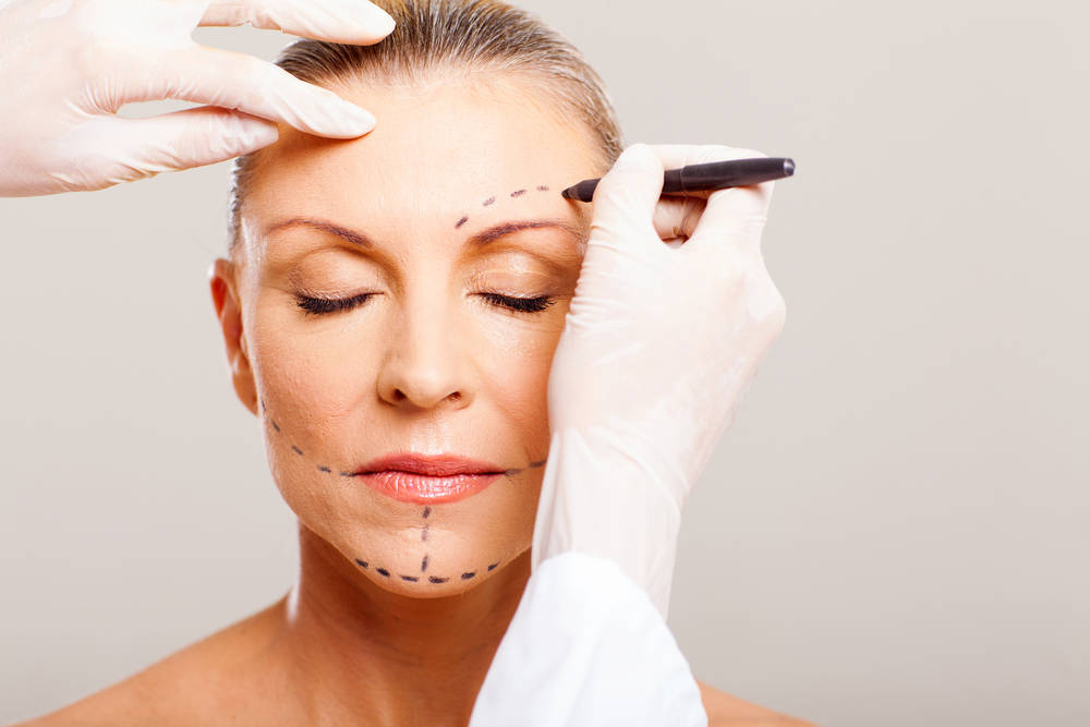 Dr. Tavoussi - California Facelift Procedures Expert | Orange County