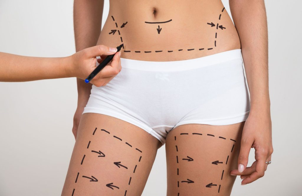 Liposuction   Suction Assisted Lipectomy   Cosmetic ...