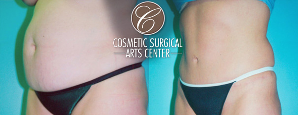 Is a Tummy Tuck Right For You?