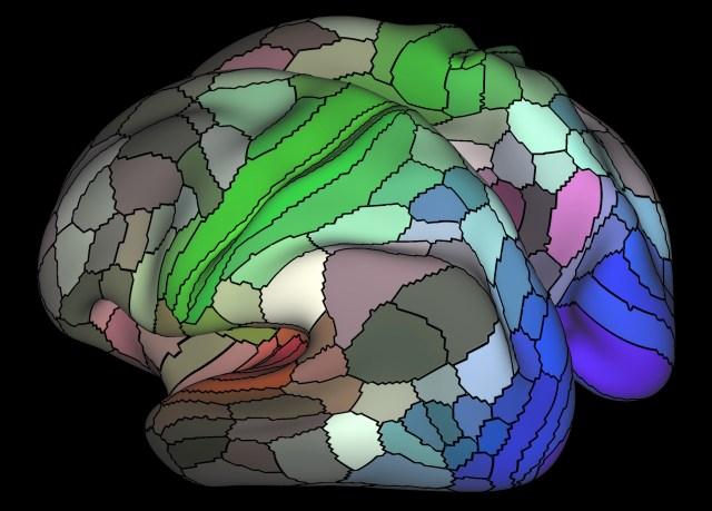 Image: Brain map