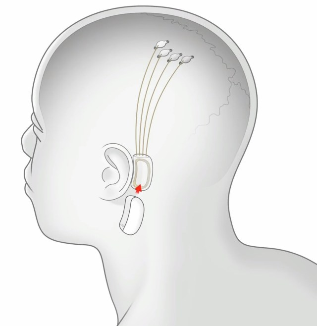 Neuralink connection
