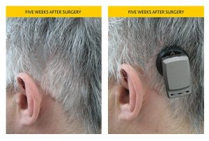 Cochlear Implant Surgery image