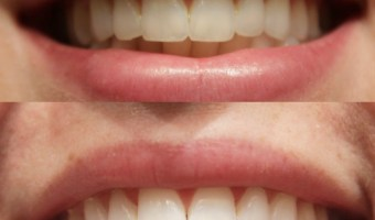 Smile Brilliant Review (+ Enter to Win Your Own Teeth Whitening System!)