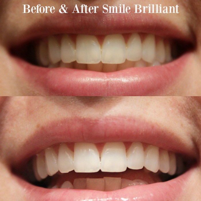 smile brilliant before & after #ad