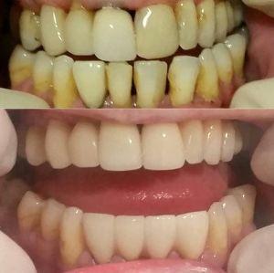 Bliss Dental et Miami Beach Smiles - Dentisterie