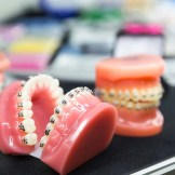 Dental or orthodontic tools, denture closeup