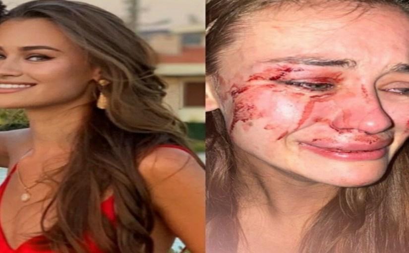 عارضة أزياء شهيرة تتعرض للضرب المبرح على أحد الشواطئ التركية