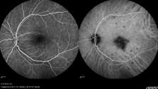 Angiogram left retina